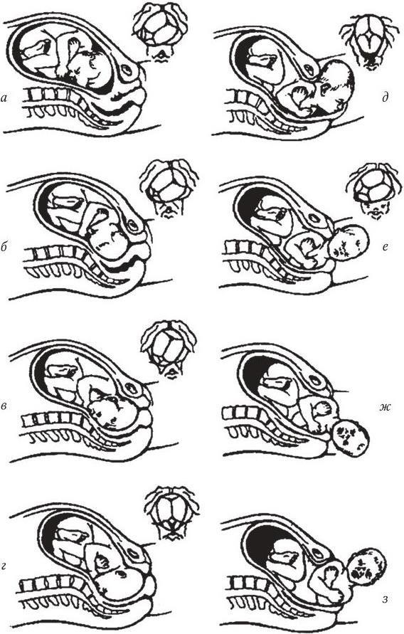 Биомеханизмы родов в картинках