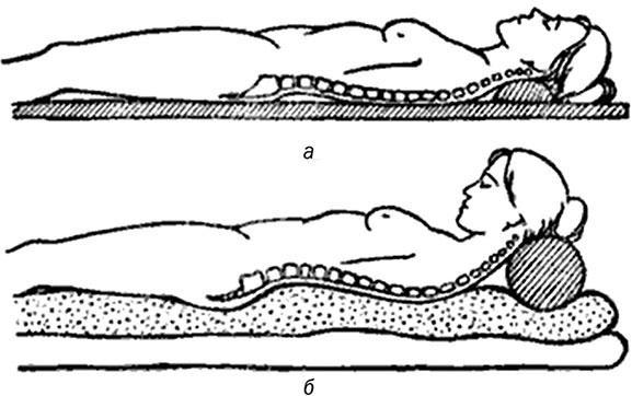 Можно ли спать на боку при компрессионном переломе позвоночника фото