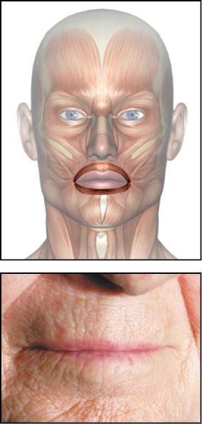 слабая круговая мышца рта фото главное